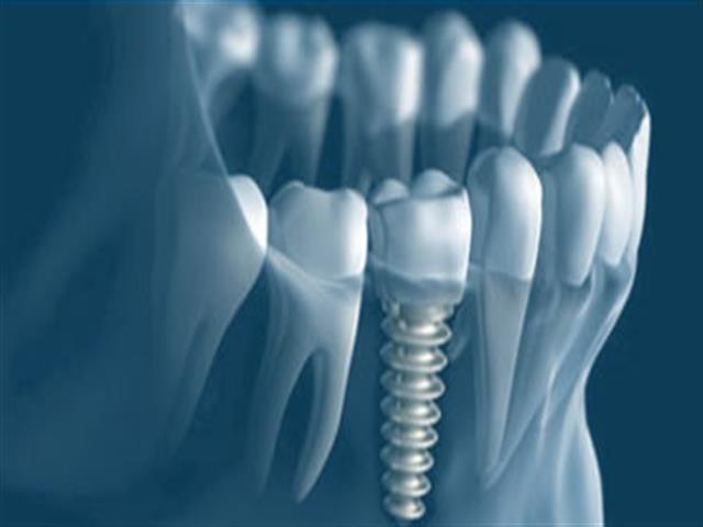 Radiografías gratis en todos nuestros tratamientos