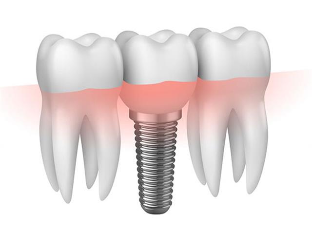 Implante con corona totalmente terminado.