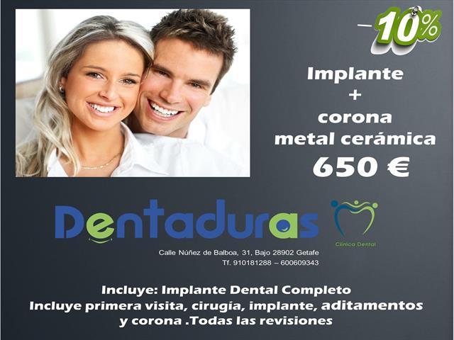 Implante todo incluido por sólo 650€